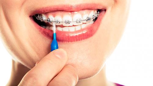 Межзубные ершики для зубов